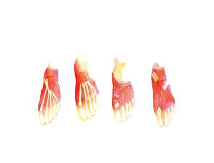 ZM1063 足底肌肉解剖