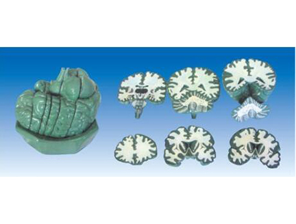 ZM1056脑连续额状切面模型