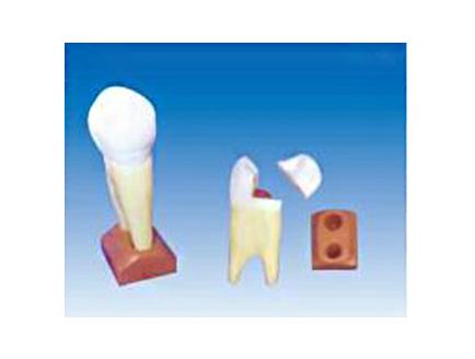 ZM1049-8 上颌两根龋齿模型