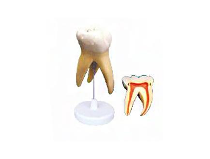 ZM1049-1 磨牙分解模型