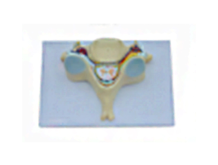 ZM1021-4 第五颈椎