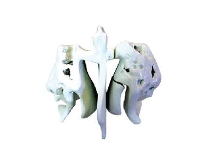 ZM1017 筛骨放大模型