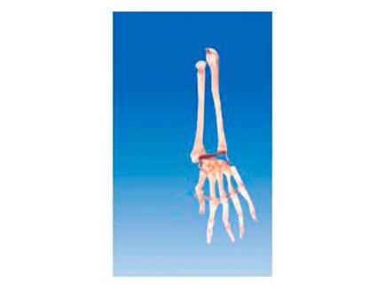 ZM1026-4 手掌骨带尺骨和桡骨