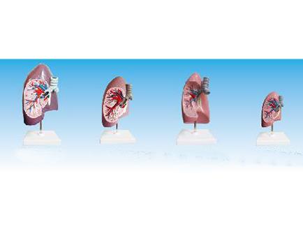 ZM1080-1 支气管右肺解剖模型