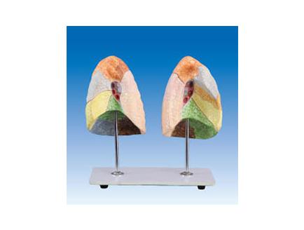 ZM1084 肺段模型