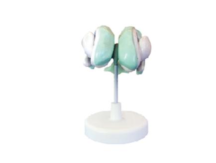 ZM1160-1 脑室基底神经核