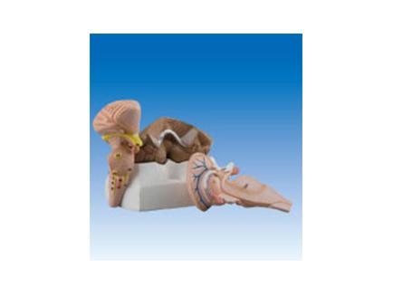 ZM2108 第四脑室脉络组织和脉络丛
