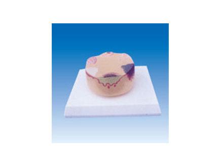 ZM2095 皮肤癌模型