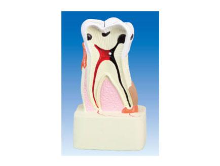 ZM2070 牙齿病理模型