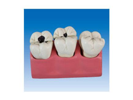ZM2069 牙齿病理模型