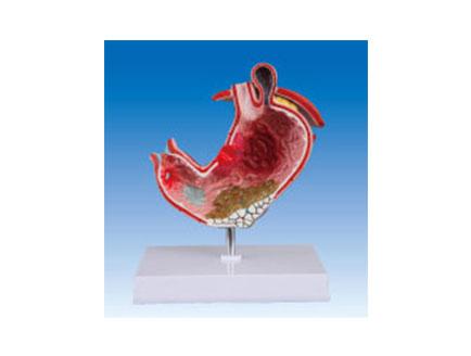 ZM2011 病态胃解剖模型