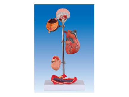 ZM2022 高血压,5部件