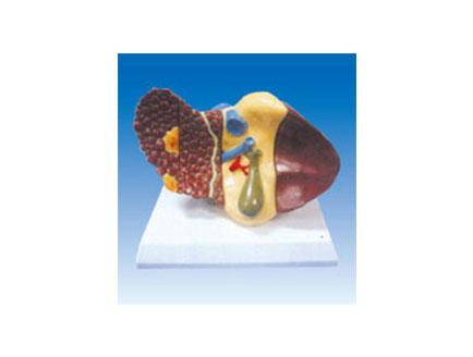 ZM2027 肝癌模型