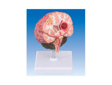 ZM2029 脑中风病理