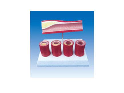 ZM2036 血栓模型