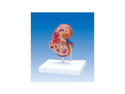 ZM2042 肾脏囊肿解剖模型