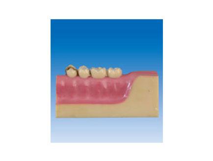 ZM2068 牙齿病理模型