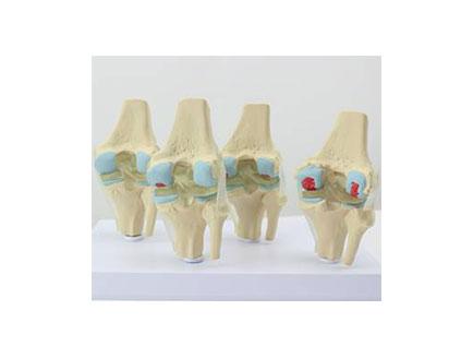 ZMJY/A3007  4个阶段膝关节综合模型