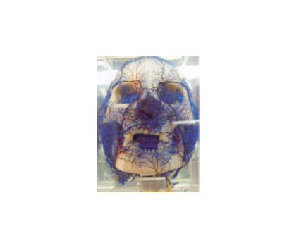 铸形标本系列33