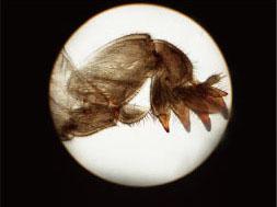 昆虫挖掘足装片