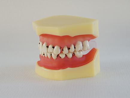 ZM-DSC01951_L4牙周病模型