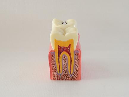 ZM-DSC02101_M2六倍龋齿对比