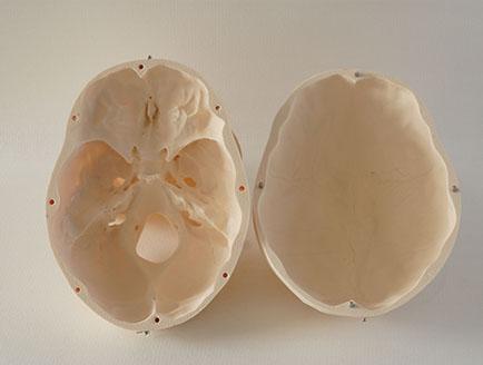 ZM-DSC02134-S1三部分头颅
