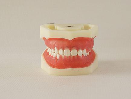 ZM-DSC02184_L5牙周病模型