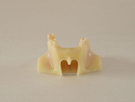 ZM-DSC02218-T5上颌窦提升术