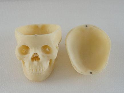ZM-DSC02281-S6小头颅