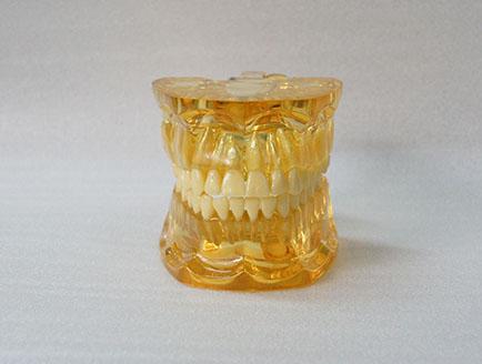 ZM-DSC02527_C12透明拔牙模型