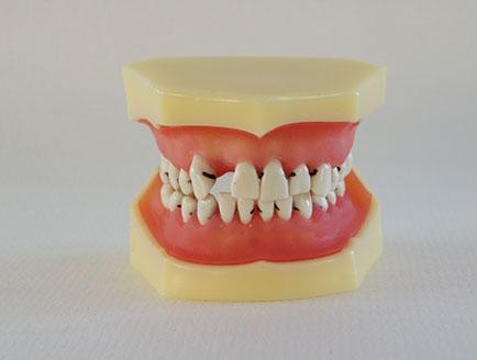 ZM-E2_L4牙周病模型