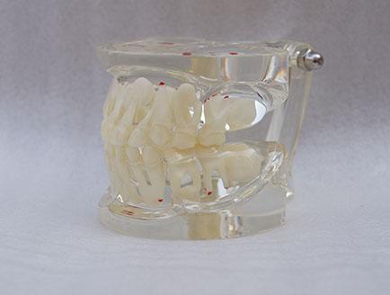 ZM-HST-A11-三岁如恒牙交替-01_C6乳恒牙交替病理
