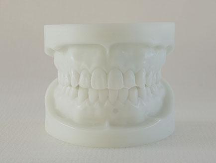 ZM-S22_Q3白刚玉牙