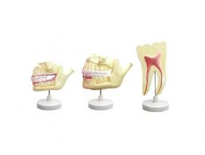 ZM1048 乳牙恒牙牙列模型