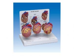 ZM2106 小型心脏病理模型