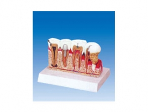 ZM2067 常见牙病组合模型