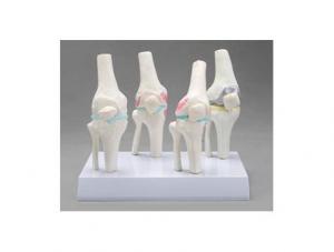 ZMJY/A3008  膝关节健康病态比较模型