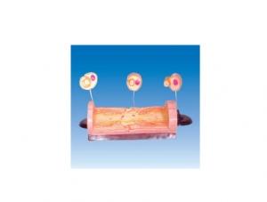 ZM6049 周围神经纤维髓鞘的发生和有髓纤维的超微结构