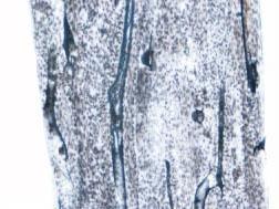 人骨密质纵磨片