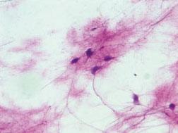 运动神经元装片