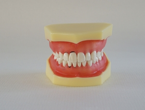 ZM-1_L3牙周病模型