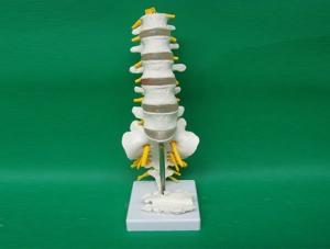 ZM1023-13 5节腰椎带骶骨打开